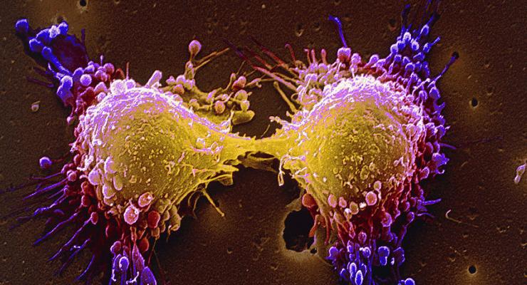 Irlandzcy naukowcy walczą z rakiem przełyku